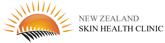 Mole Map | Skin Check | Mole Check | Skin Cancer Clinic - Auckland